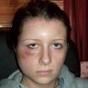 Алергия за боядисване, симптоми и лечение